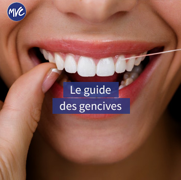 guide gencive